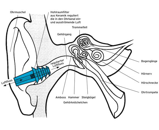 Earplanes medizinische Ohrstöpsel gegen Ohrenschmerzen beim Fliegen